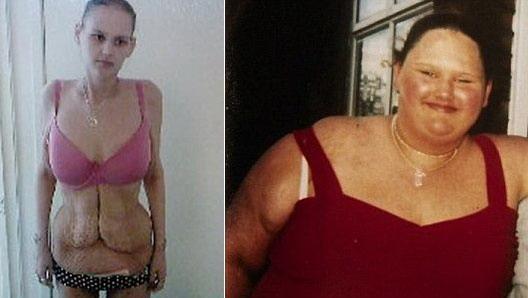 视频时讯惊奇:最胖少女因减肥患上厌食症