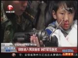 <a href=http://news.cntv.cn/society/20111031/101692.shtml target=_blank>[超级新闻场]阜阳:钢筋插入男孩面部 消防紧急施救</a>