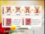 防治痔疮有妙招 名医大讲堂 2017.06.08 - 厦门电视台 00:27:32
