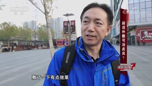 蒜泥外敷可治皮炎 是真的吗 2019.01.12 - 中央电视台 00:06:50