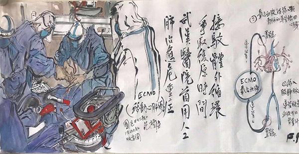 范揚 接駁體外循環爭取復原時間,武漢醫院首用人工肺治愈危重症 2020年