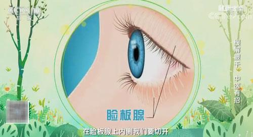 干眼严重会致盲!这三个坏习惯要避免